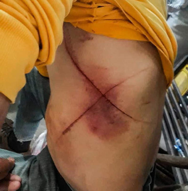 Venezuelan Christians forced to eat pages of the Bible, have 'crosses' etched into their bodies