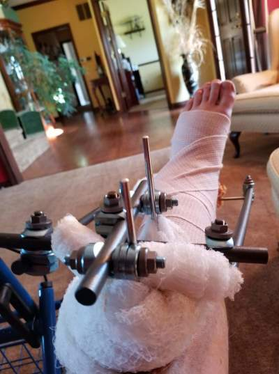 Michael Robertson's foot and leg after the motocycle accident