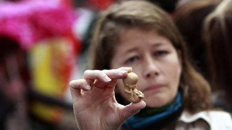 12-week-old embryo model