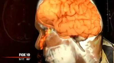 Nose leaking brain fluid
