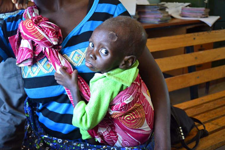 Moyo Clinic ADP Zambia