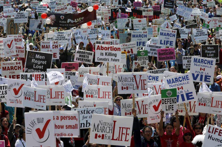 abortion pro-life